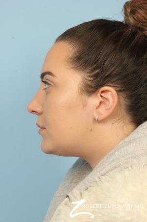 Rhinoplasty: Patient 21 - After Image 2