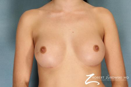 Breast Augmentation: Patient 15 - After Image