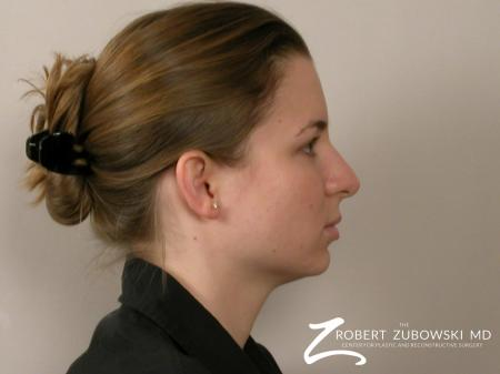Chin Augmentation: Patient 1 - Before and After Image 2