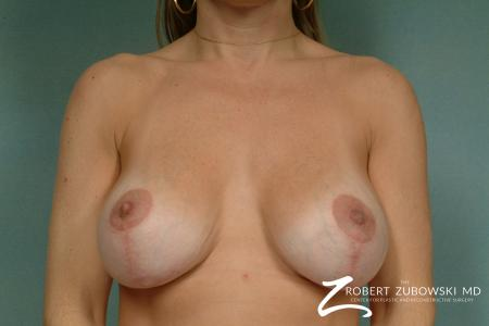 Breast Lift And Augmentation: Patient 14 - After Image 1