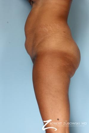 Liposuction: Patient 49 - Before Image 3