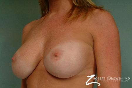 Breast Augmentation: Patient 31 - After Image 2