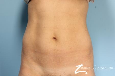 CoolSculpting®: Patient 5 - Before Image