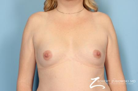 Breast Augmentation: Patient 10 - Before Image