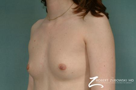 Breast Augmentation: Patient 19 - Before and After Image 2