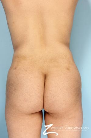Butt Augmentation: Patient 4 - After Image