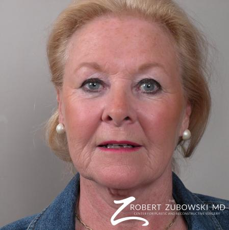 Facelift: Patient 16 - Before Image