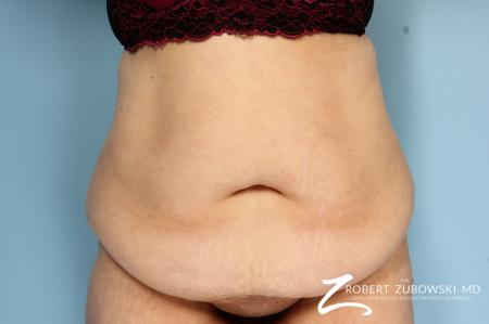 Body Lift: Patient 4 - Before Image