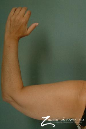 Liposuction: Patient 23 - Before Image