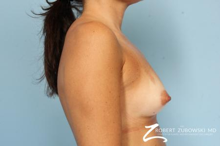 Breast Augmentation: Patient 40 - Before Image 3