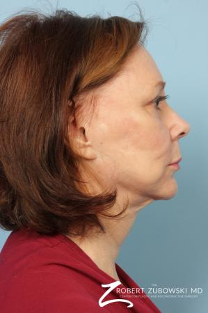 Facelift: Patient 17 - Before and After Image 2