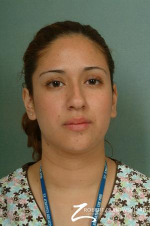 Rhinoplasty: Patient 13 - Before Image