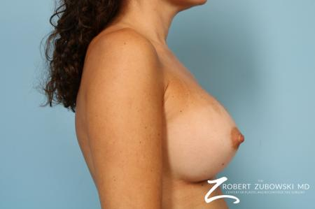 Breast Augmentation: Patient 40 - After Image 3