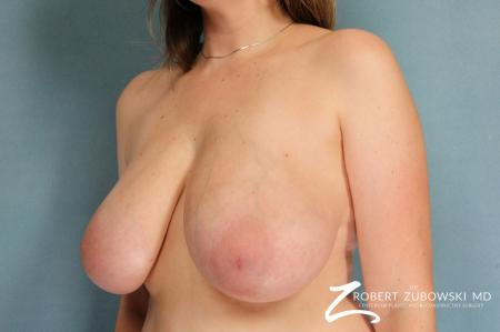 Breast Reduction: Patient 11 - Before and After Image 2