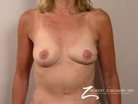 Breast Reconstruction: Patient 1 - After Image 1