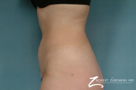 Liposuction: Patient 29 - After Image 4