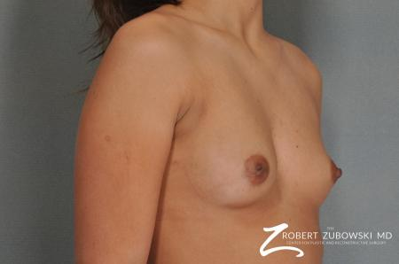 Breast Augmentation: Patient 12 - Before and After Image 2