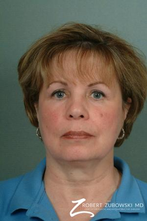 Chin Augmentation: Patient 2 - Before Image