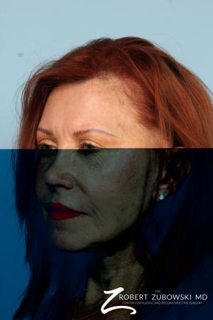 Facelift: Patient 29 - Before and After Image 3