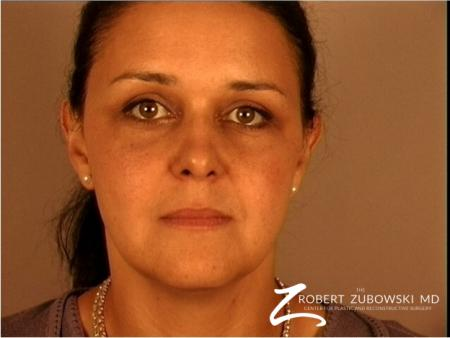 Brow Lift: Patient 3 - After Image 1