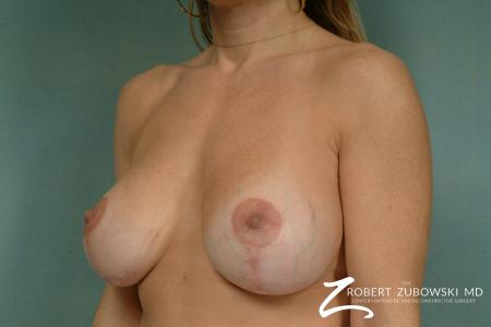 Breast Lift And Augmentation: Patient 14 - After Image 2