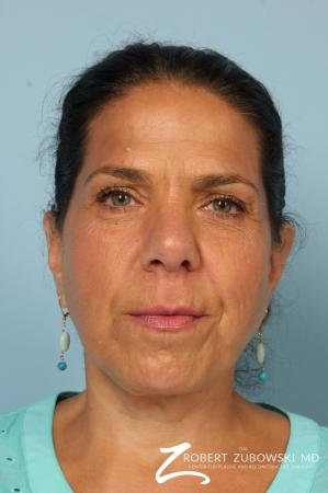 Chin Augmentation: Patient 4 - After Image 1
