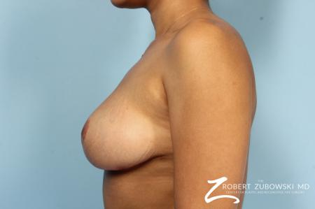Breast Revision: Patient 2 - After Image 2