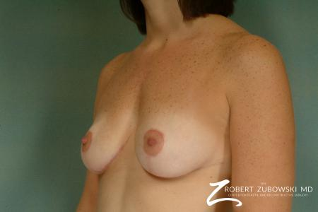 Breast Lift: Patient 9 - After Image 2
