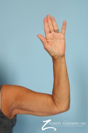 Arm Lift: Patient 5 - After Image 1