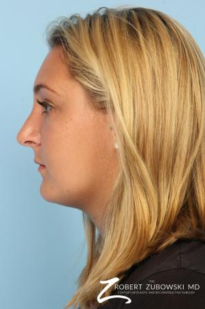 Rhinoplasty: Patient 18 - After Image 2