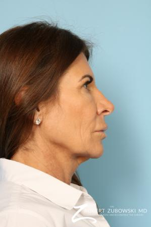 Lip Augmentation: Patient 1 - Before Image 2