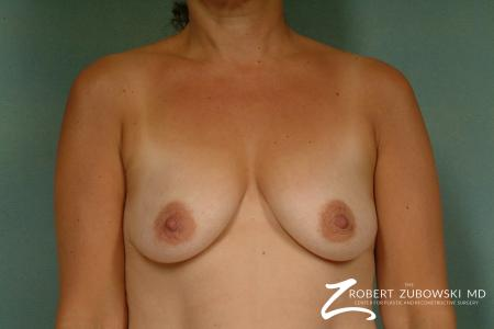 Breast Lift And Augmentation: Patient 16 - Before Image 1