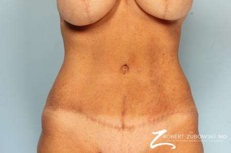 Tummy Tuck: Patient 23 - After Image 1