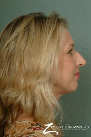 Rhinoplasty: Patient 10 - Before and After Image 3