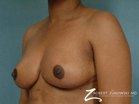 Breast Reduction: Patient 2 - After Image 2