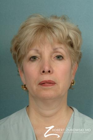 Neck Lift: Patient 2 - Before Image 1