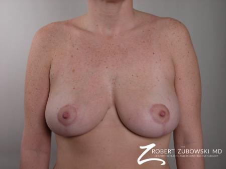 Breast Lift: Patient 5 - After Image