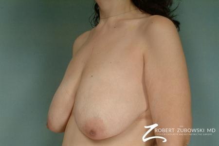 Breast Lift: Patient 8 - Before and After Image 2