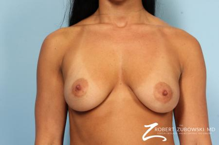 Breast Augmentation: Patient 41 - Before Image 1