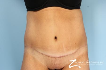 Body Lift: Patient 4 - After Image