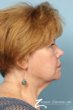 Facelift: Patient 26 - Before and After Image 2