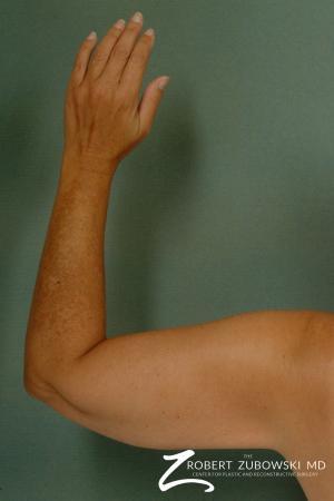 Liposuction: Patient 23 - After Image