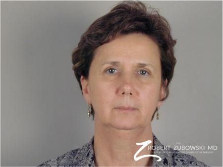 Brow Lift: Patient 2 - Before Image