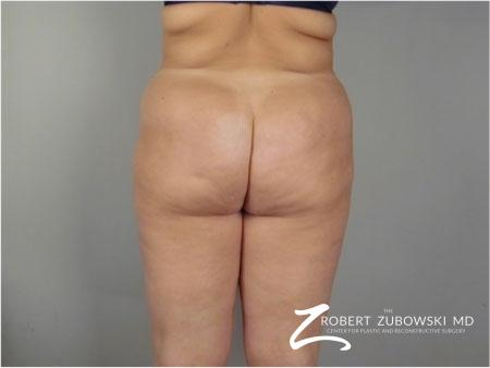 Liposuction: Patient 41 - Before and After Image 3
