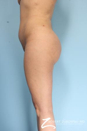 Butt Augmentation: Patient 2 - After Image