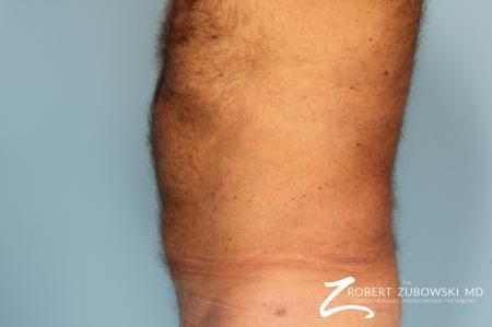 Liposuction: Patient 18 - After Image 2