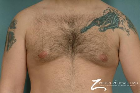 Gynecomastia: Patient 9 - After Image 1