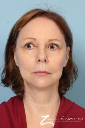 Facelift: Patient 17 - Before Image