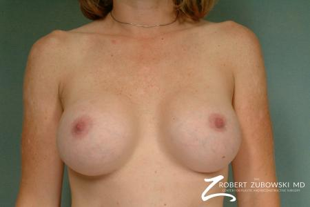 Breast Augmentation: Patient 28 - After Image 1