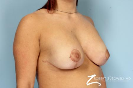 Breast Lift And Augmentation: Patient 18 - After Image 2